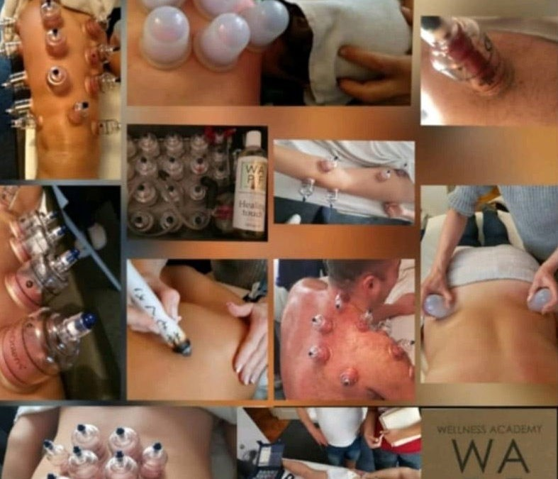 HCMT – Holistic Cupping Massage & Therapy WAPF